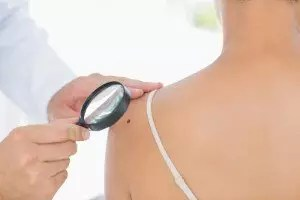 moles on your arm could predict your risk of melanoma