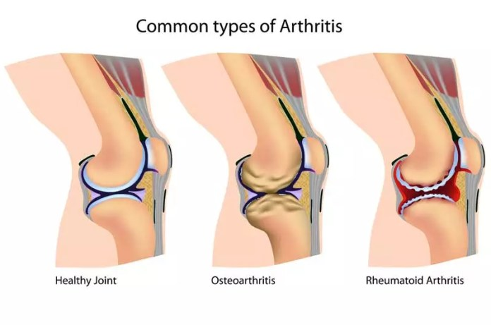 common-types-of-arthritis