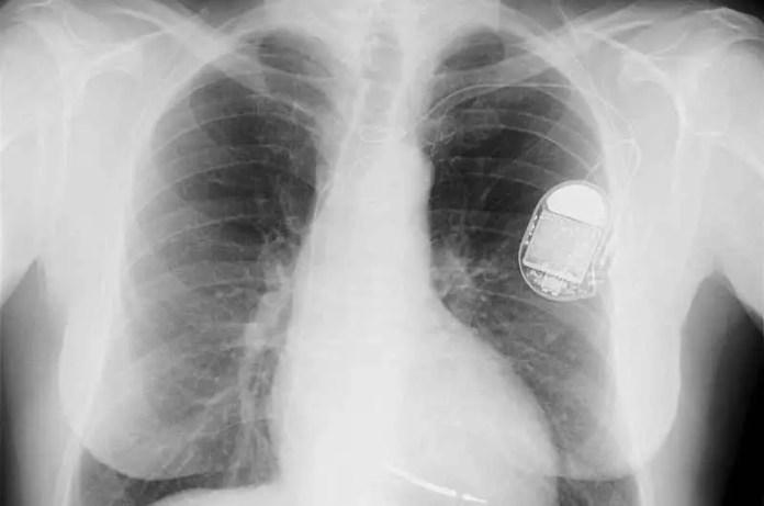 implantable cardioverter-defibrillators