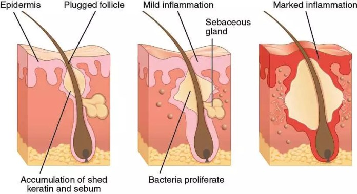 Mild-to-Moderate Acne