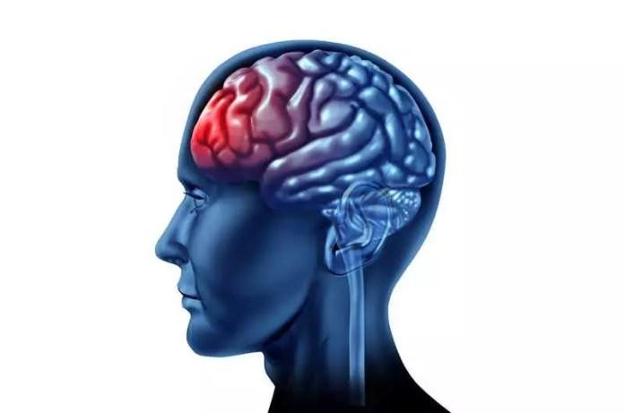 childhood-onset epilepsy