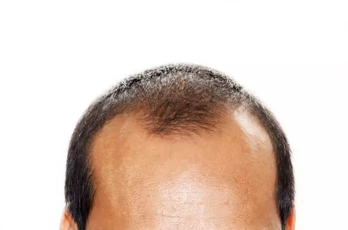 hair loss and testosterone