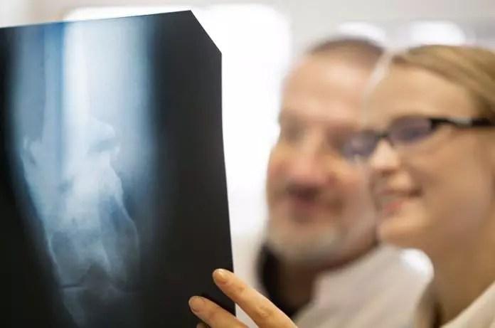 rheumatoid arthritis treatment