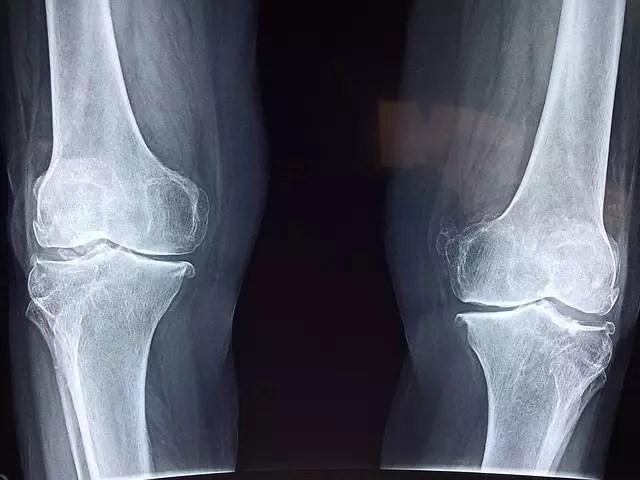 A stem cell treatment for knee osteoarthritis - Medical News