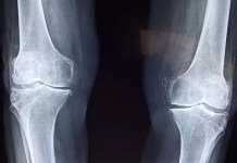 treatment for knee osteoarthritis