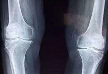 treatment for knee osteoarthritis