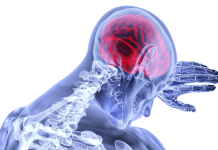 treat post concussion symptoms