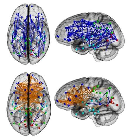 Connections shown in different colors on images of brains