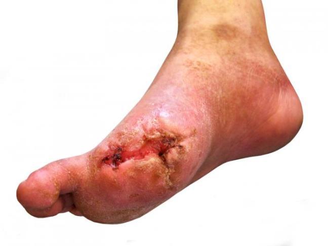 A diabetic foot.