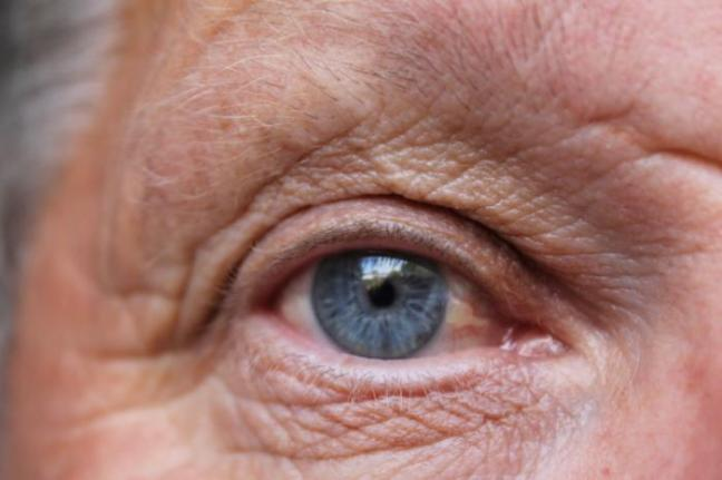 An older person's eye.