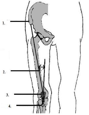 Masurarea unghiului femuro-tibial (unghiul Q): 1. Spina iliaca anterosuperioara; 2. Unghiul tibiofemural; 3. Centrul patelei; 4. Tuberculul tibial