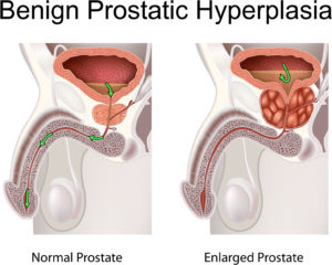 Benign prostatic hyperplasia (prostatic hypertrophy)