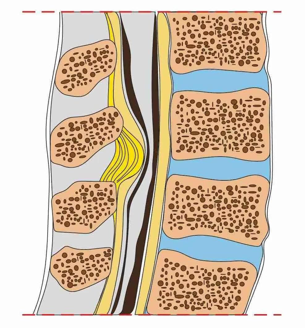 Risultati immagini per stenosi rachidea