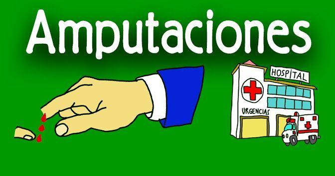 Cómo actuar ante las amputaciones en la Medicinapedia