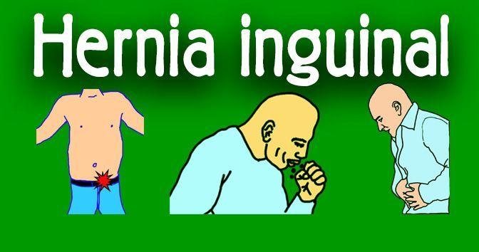 Hernia inguinal - Todo lo que necesita saber