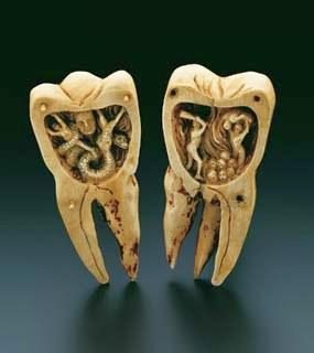 denti nell'antichità