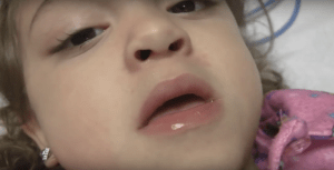 Video Nasal Flaring & Suprasternal Retractions