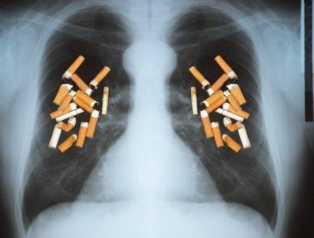 Resultado de imagen para imagenes fumadores compulsivos