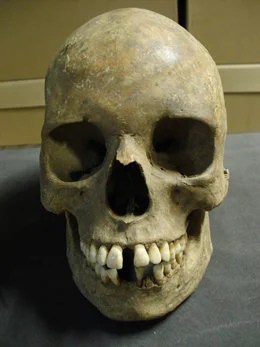 A skull from the East Smithfield plague pits in London, located under what is now the Royal Mint. Researchers announced today that they have sequenced the entire genome of the Black Death, one of the most devastating epidemics in human history. Photo by Museum of London