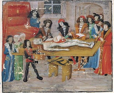 Autopsy of a noble mother, by Guy of Chauliac, late 15th century France