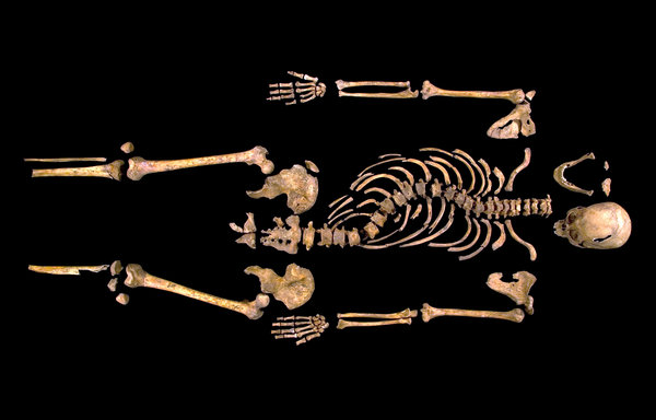 Richard III skeletal remains