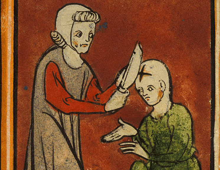 medieval surgery