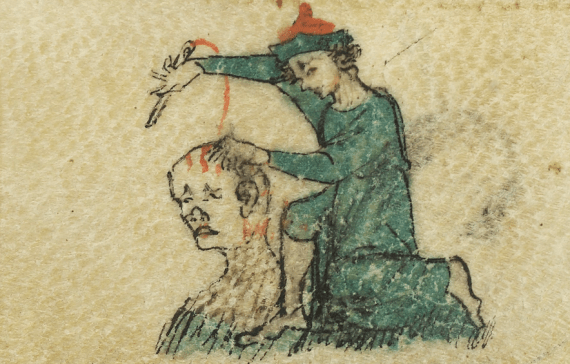 14th Century Image Of A Surgeon Sewing Head Wound