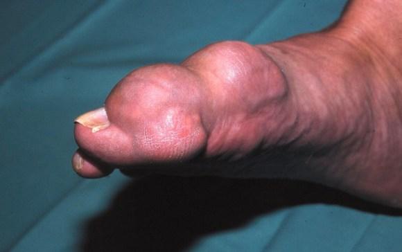 Persendian Bengkak Karena Penyakit Asam urat