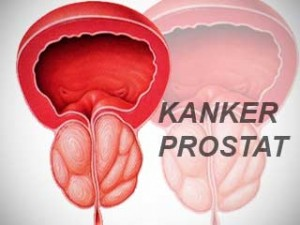 Saran Ahli Anti Kanker Prostat