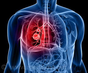 New Technology Can Help Detect Early-stage Lung Cancer