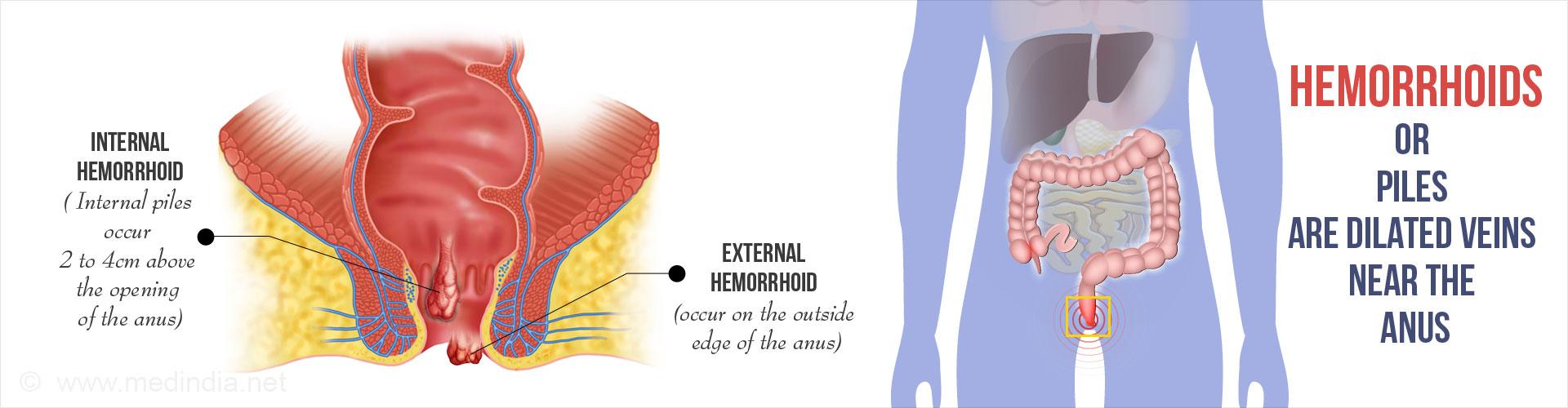 External Hemorrhoids Severe And Internal
