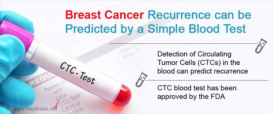 Recurrence of Breast Cancer can Now be Predicted by a Simple Blood Test