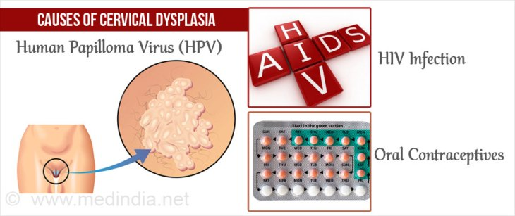 Causes of Cervical Dysplasia