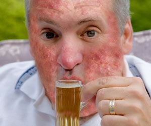 Alcohol Exacerbates Skin Diseases and Psoriasis