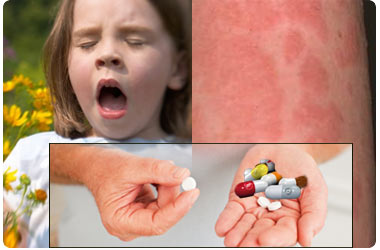... only when you have a mild allergy severe cases of allergy have