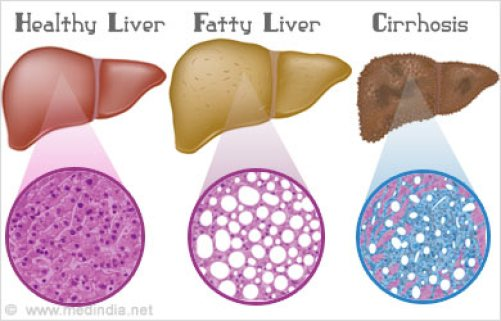 Image result for Best product to cure liver disease