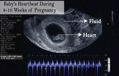 Corazón Fetal con Ultrasonido