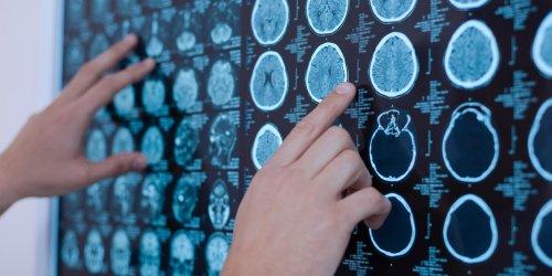 Tumeur au cerveau : l'hérédité en cause ?