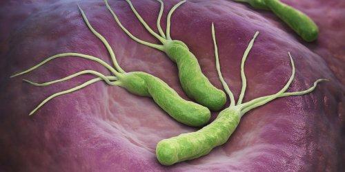 Tumeur à l'estomac : une bactérie en cause dans le cancer gastrique ?