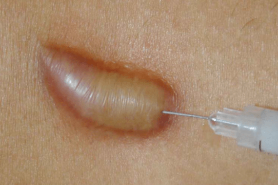 keloid-injections