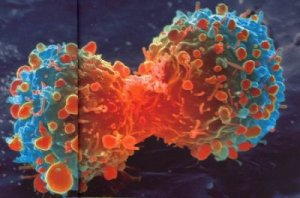 Biologie de la cellule cancéreuse. Le tissu cancéreux, le stroma. La carcinogénèse