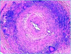 Inflammation granulomateuse : Tuberculose