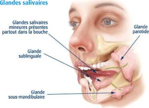 Lithiase salivaire