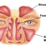 Fosses nasales – Sinus