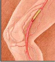 arteriopathies-iatrogenes-toxiques