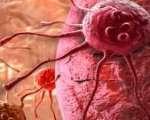Cancer secondaire des os métastases