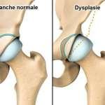 Dysplasies et luxations congénitales de hanche
