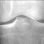 Épanchement articulaire du genou