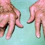Fiche additive : Polyarthrite rhumatoïde de l'adulte (III). Traitement (Traitements anti-« tumor necrosis factor » (TNF) dans la polyarthrite rhumatoïde)