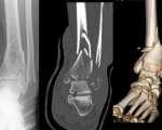 Fractures du pilon tibial (Suite)